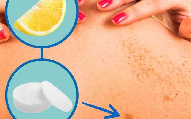 10 ways to remove dark spots at home